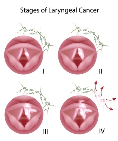 Laryngeal cancer Vector