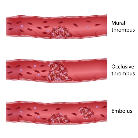 vasos sanguineos: Tipos de trombosis