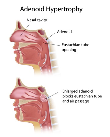 Adenoid hypertrophy Illustration