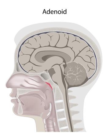 Adenoid location in the head