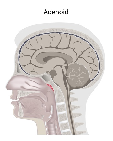 median: Adenoid location in the head