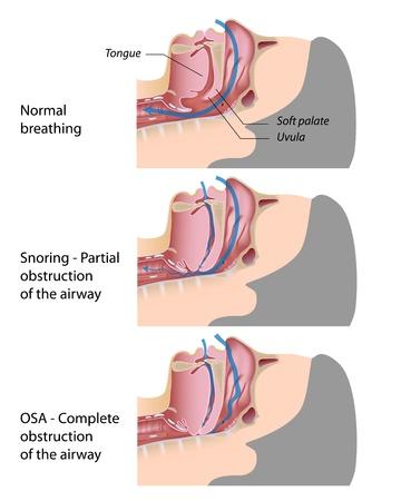 atmung: Schnarchen und Schlafapnoe Illustration
