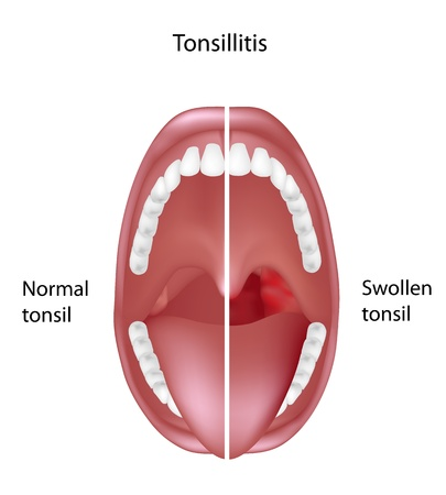 bacterial infection: Amigdalitis