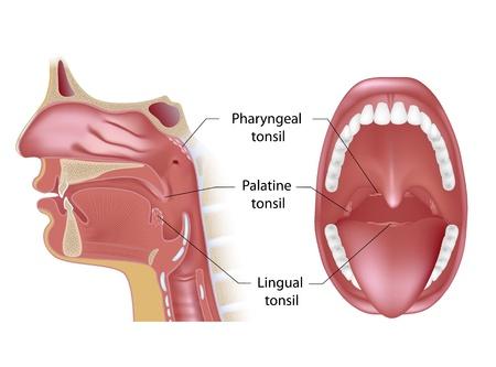 mediaan: Amandelen in open mond en sagittale uitzicht