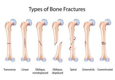 huesos humanos: Tipos de fracturas óseas