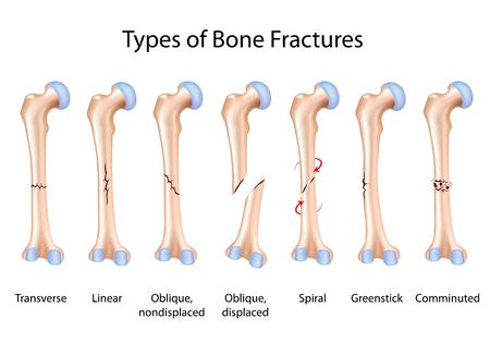 femur: Types of bone fractures