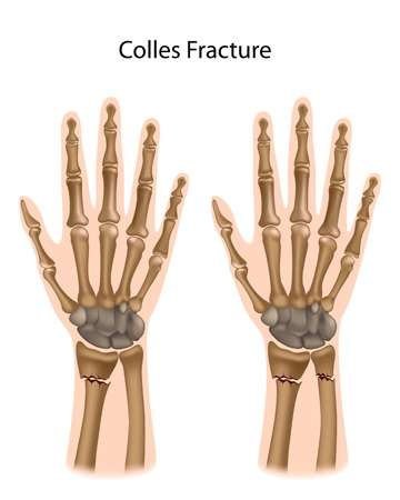 break joints: Colles fracture