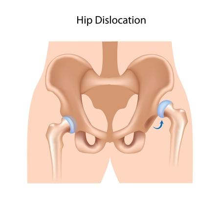 luxacion: Dislocación de la cadera