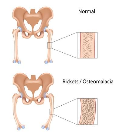 osteoporosis: Raquitismo y Osteomalacia