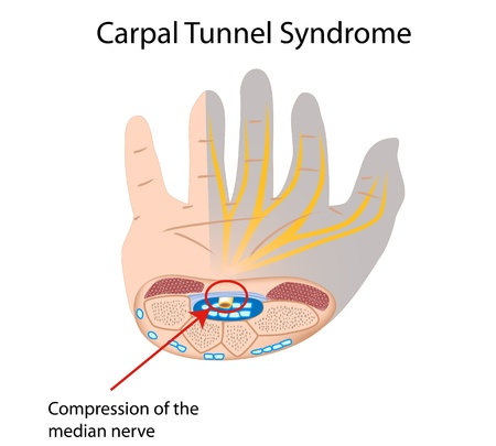 Carpal tunnel syndrome Stock Vector - 16859726
