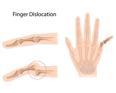 luxacion: Dislocación del dedo