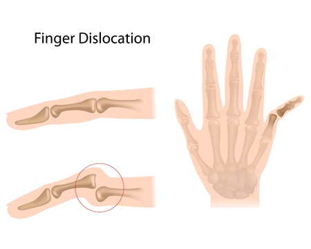 Finger dislocation Stock Vector - 16859731