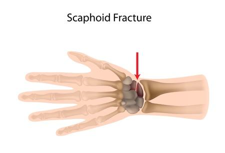 fractura: Fractura de mu�eca escafoides
