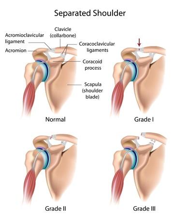 hombros: Separado hombro Vectores