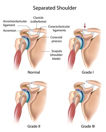 orthopedics: Separated shoulder Illustration
