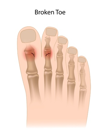 bones of the foot: Broken toe