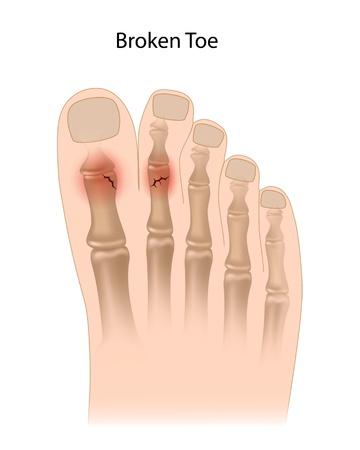 fractura: Dedo del pie roto Vectores