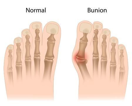Bunion in foot Illustration