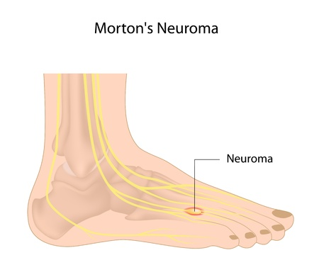 peripheral nerve: Morton neuroma Illustration