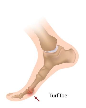 big toe: Turf toe