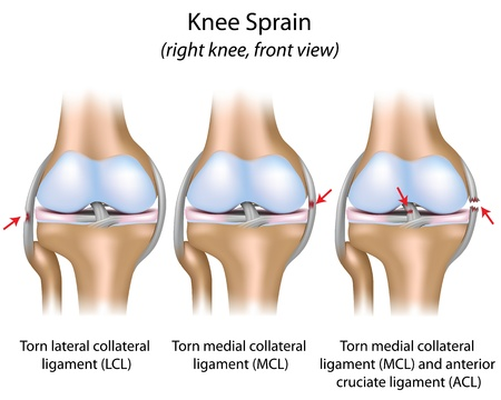 Knee sprain Vector