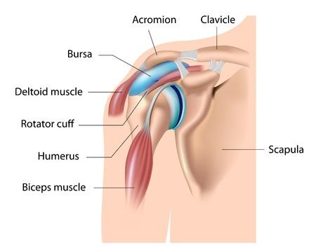 어깨 부르사, 활액낭염