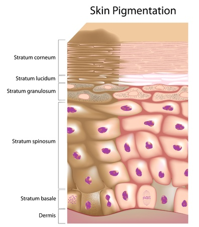exfoliation: Formation of uneven skin tone Illustration