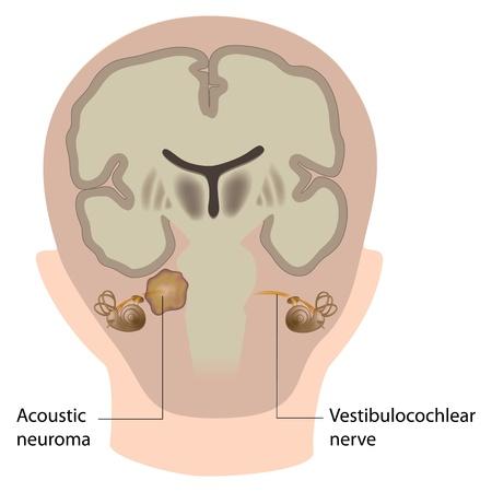 Akoestisch neuroom Stock Illustratie