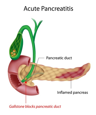 gall duct: Acute Pancreatitis Illustration