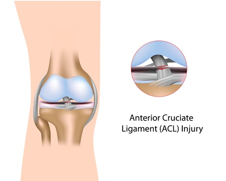 Anterior Cruciate Ligament injury Vector