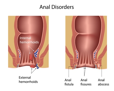 Anal disorders Vector