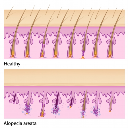 Normal hair and Alopecia areata Illustration