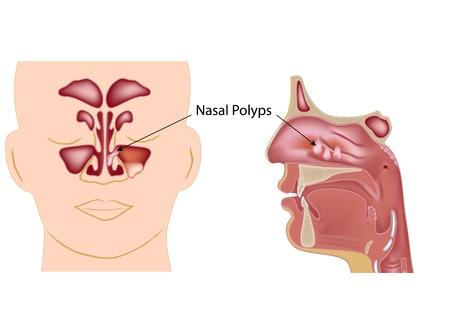 nasal: Nasal polyps