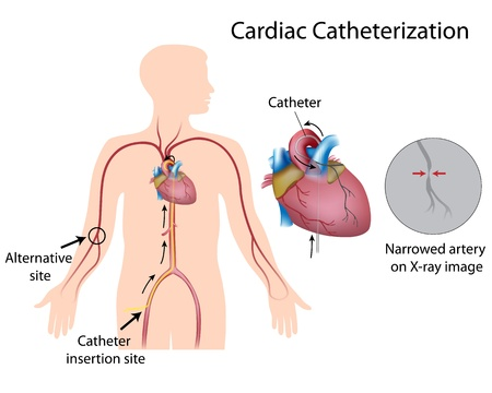 Cardiac catheterization Illustration