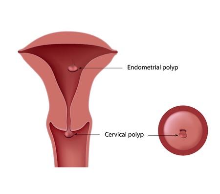 sistema reproductor femenino: Los pólipos cervicales y endometriales