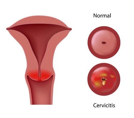 Cervicitis Illustration