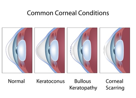 Common corneal conditions 向量圖像