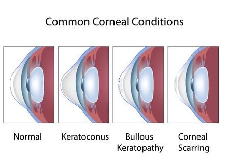 scarring: Condizioni corneali comuni Vettoriali