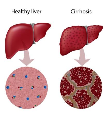 higado humano: Cirrosis Hepática