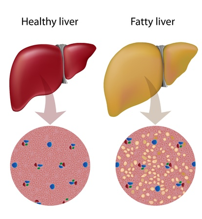 liver cells: Fatty liver disease Illustration
