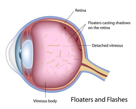 Floater und Flashes Standard-Bild - 17920229