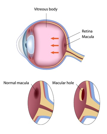 vitreous body: Macular hole