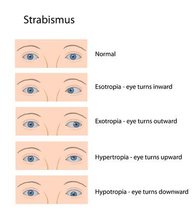 Strabismus Vector
