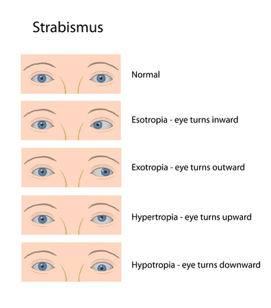 ophthalmology: Strabismus