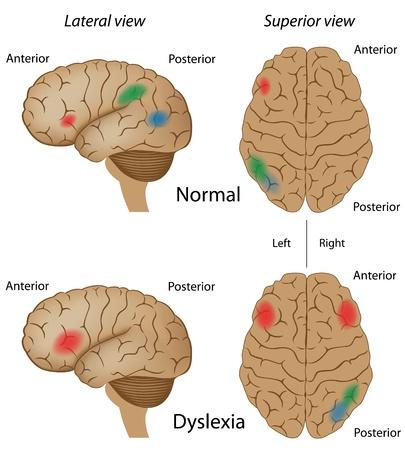 정면: 난독증 뇌의 활동