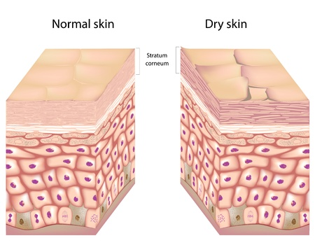 skin: Dry skin