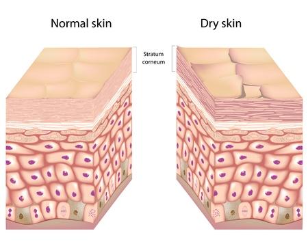 anatomia: La piel seca Vectores