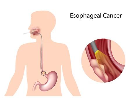digestive health: El c�ncer de es�fago Vectores