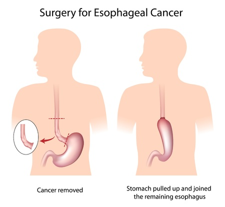 swallowing: Surgery for treatment of esophageal cancer