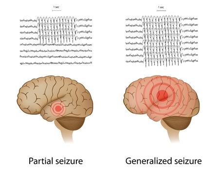 enfermedades mentales: EEG en la epilepsia parcial y generalizada